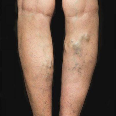 leg with spider veins